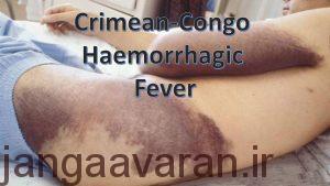 خونریزی زیرجلدی بیمار مبتلا به تب خونریزی دهنده کنگو